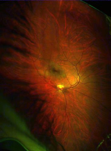 burnt-retina